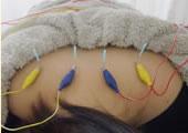 鍼に電気を流す施術。