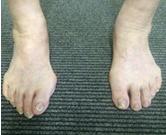 左右の外反母趾の違い